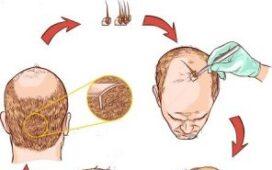 hair transplant price lahore